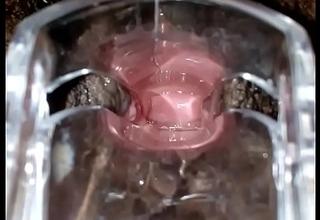 SLIM INDIAN Pitch-dark GIRL CERVIX SPECULUM CHECK VAGINAL Hole